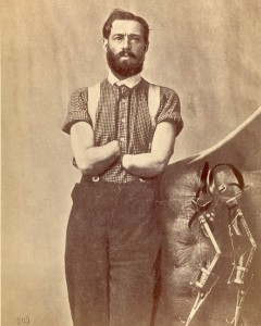 Pvt. Samuel Decker, . Double amputation of the forearms for injury caused by the premature explosion of a gun on 8 October 1862, at the Battle of Perryville, KY. Shown with self-designed prosthetics. Courtesy of the National Museum of Health and Medicine